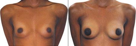 грудь до и после