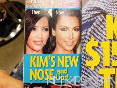 Ким Кардашиан опровергает слух о пластике носа и губ