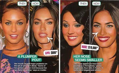 Меган Фокс: до и после