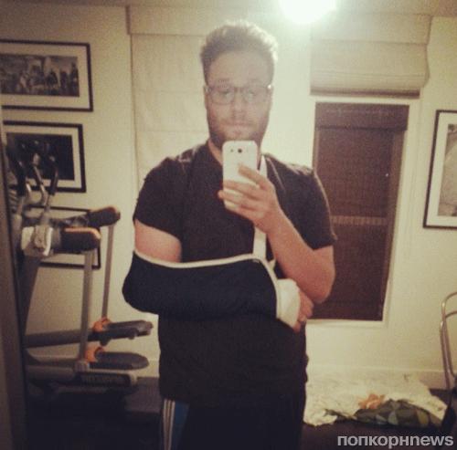 Сет Роген сломал локоть