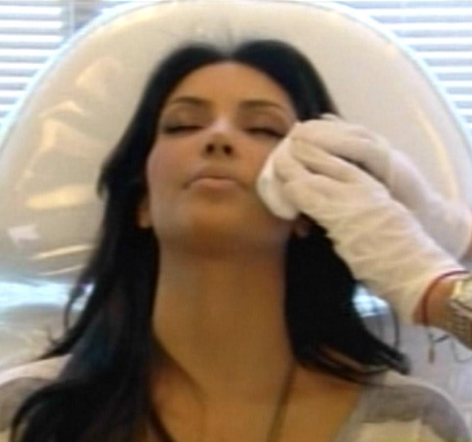 Неудачный опыт Ким Кардашиан с уколами ботокса