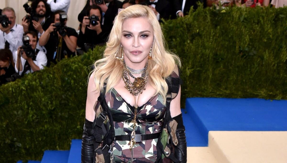 «Что произошло?»: Мадонна спровоцировала слухи о проблемах со здоровьем фото со швами