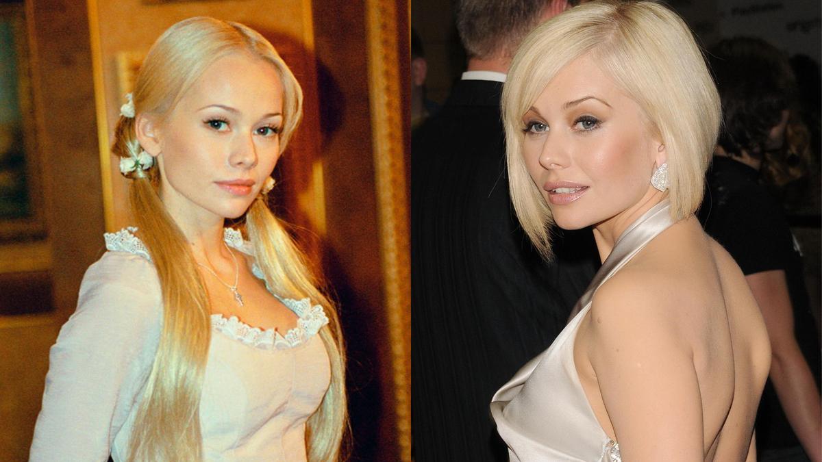 «Сделанные» лица: 5 российских актрис, которые потеряли изюминку после пластики
