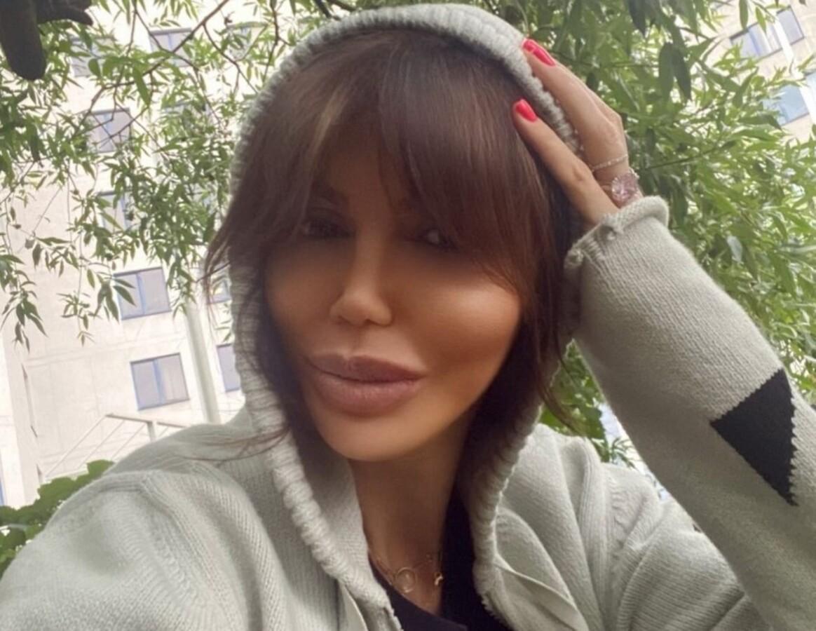 «Волосы выпали, когда я лежала в коме»: тяжелобольной Казьминой не дают добрых прогнозов