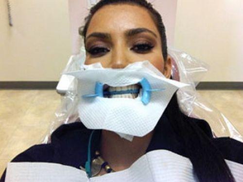 Снимок Ким Кардашиан из кабинета стоматолога