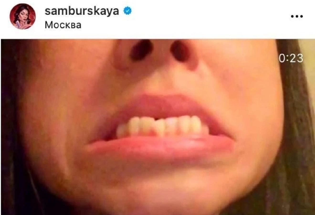 Самбурская с кривыми зубами